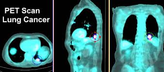 PET scan lung cancer