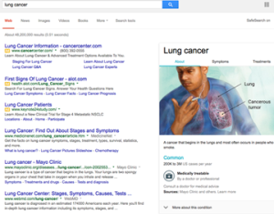 lung cancer search results